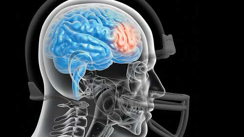 Football Helmet Safety